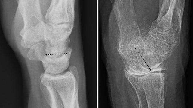 Maca benefits bone density